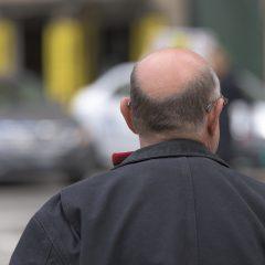 Limitez la chute de cheveux avec des solutions naturelles !